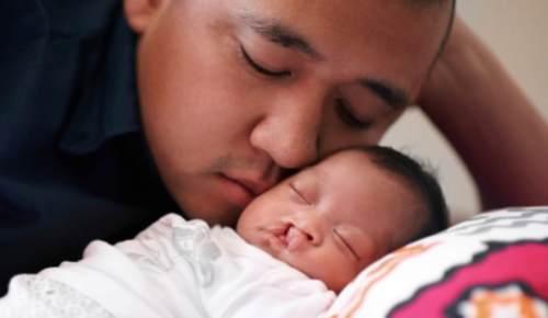 ¿Cómo cuidar a un bebé con labio leporino?