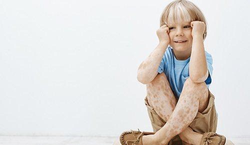 Manchas blancas en la piel de los niños en verano