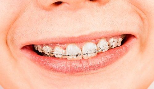 Maloclusiones dentales en niños