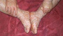 Ictiosis en bebés: la enfermedad de las escamas