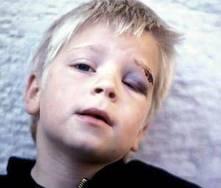Malos tratos: infancia robada