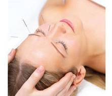 Fertilidad: acupuntura y otras terapias alternativas