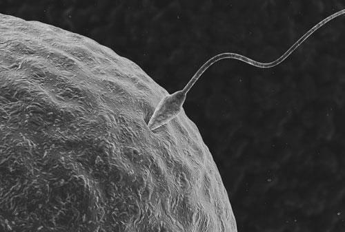 La fecundación in vitro puede evitar la transmisión de enfermedades mitocondriales