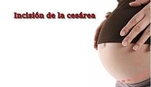¿En qué semana puede nacer un bebé por cesárea?